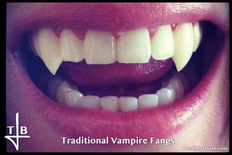 http://traditional_vampire-custom_fangs-teeth_by_dnash-12