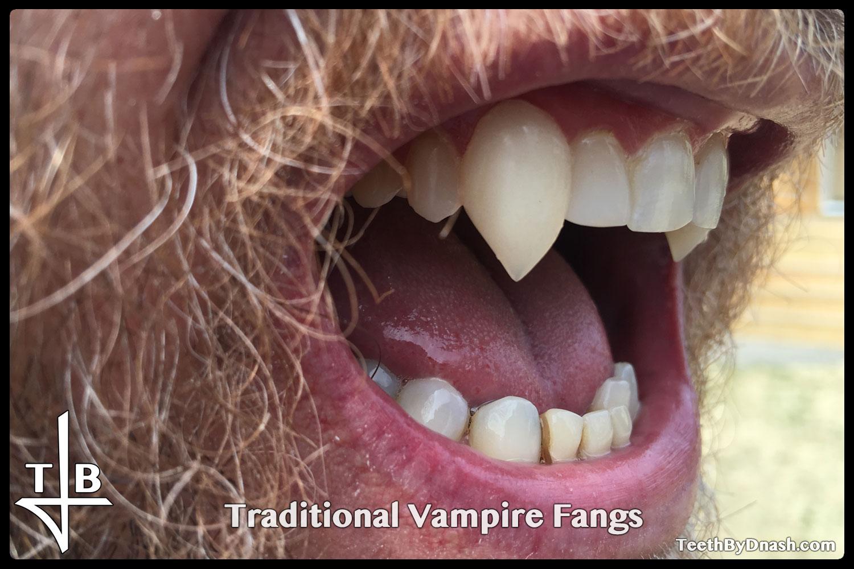 http://traditional_vampire-custom_fangs-teeth_by_dnash-14