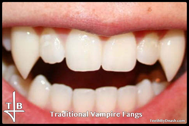 http://5traditional_vampire-custom_fangs-teeth_by_dnash-1