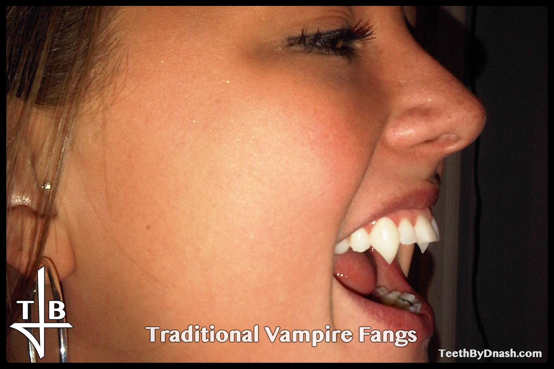 http://traditional_vampire-custom_fangs-teeth_by_dnash-16