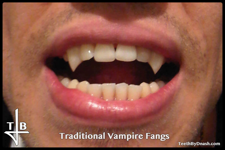 http://traditional_vampire-custom_fangs-teeth_by_dnash-17