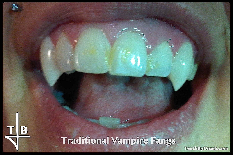 http://traditional_vampire-custom_fangs-teeth_by_dnash-18