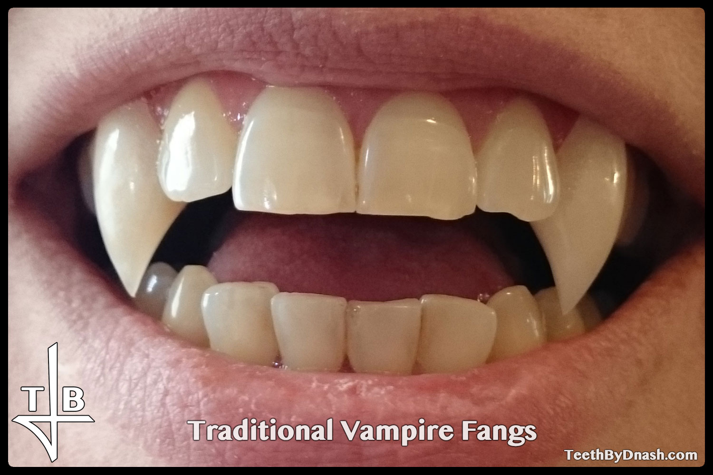 http://traditional_vampire-custom_fangs-teeth_by_dnash-20