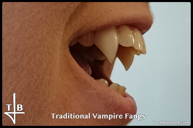 http://traditional_vampire-custom_fangs-teeth_by_dnash-21