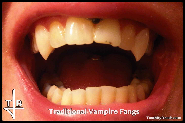http://traditional_vampire-custom_fangs-teeth_by_dnash-23