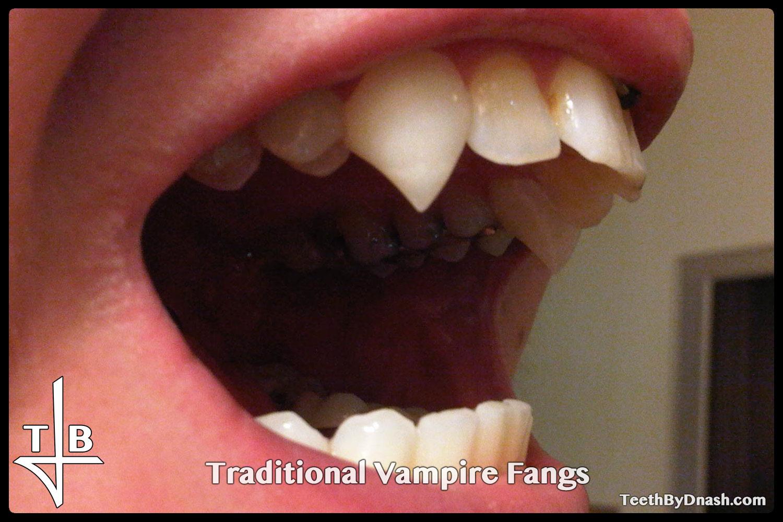 http://traditional_vampire-custom_fangs-teeth_by_dnash-24