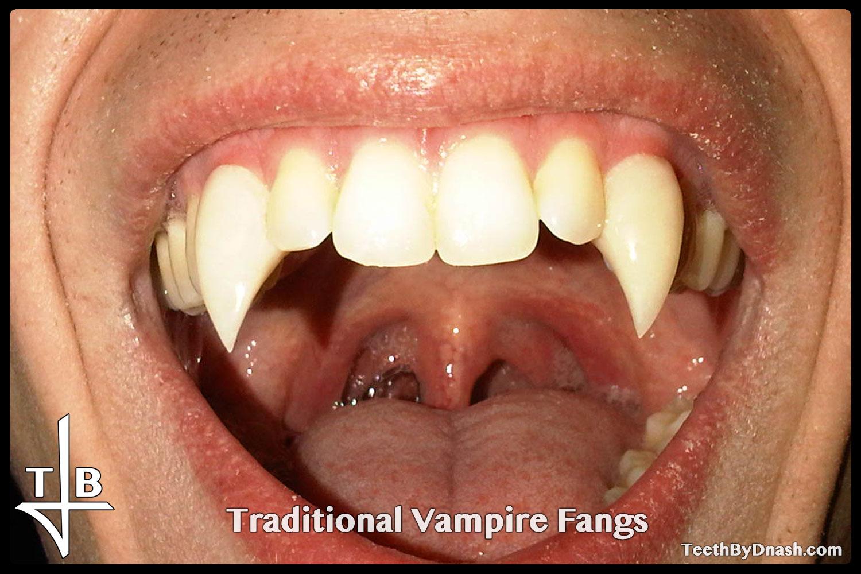 http://traditional_vampire-custom_fangs-teeth_by_dnash-25
