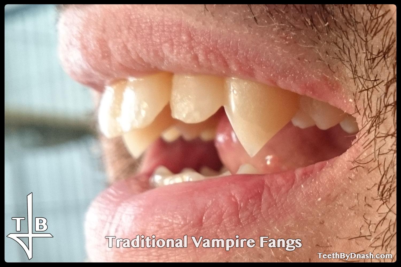 http://traditional_vampire-custom_fangs-teeth_by_dnash-27