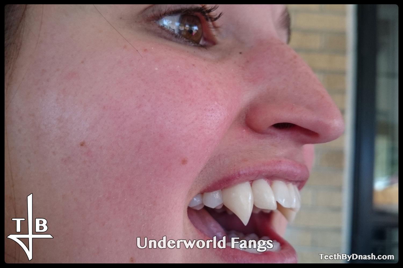 http://underworld-custom_fangs-teeth_by_dnash-07