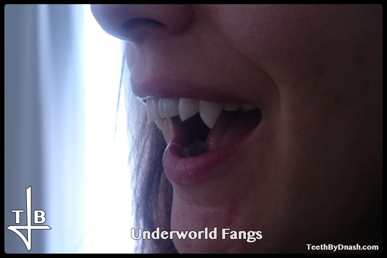 http://underworld-custom_fangs-teeth_by_dnash-10