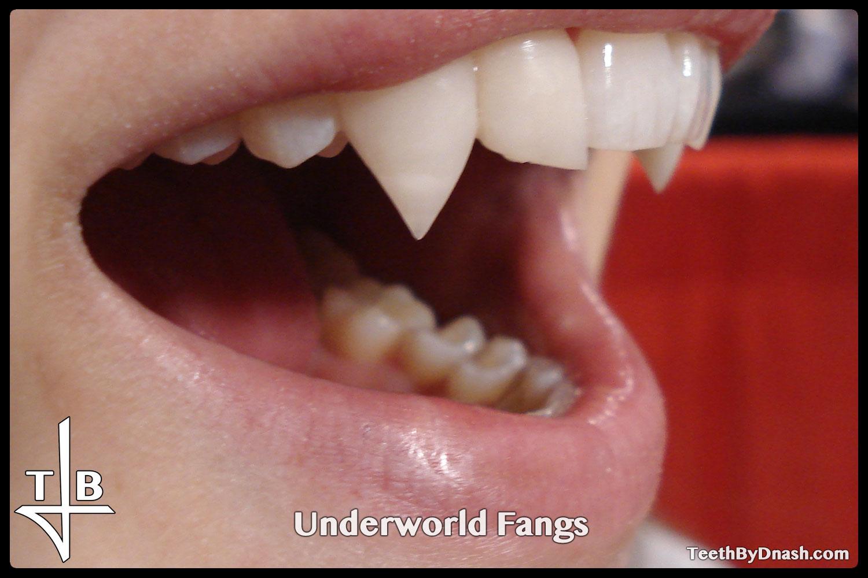 http://underworld-custom_fangs-teeth_by_dnash-12