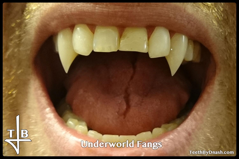 http://underworld-custom_fangs-teeth_by_dnash-13