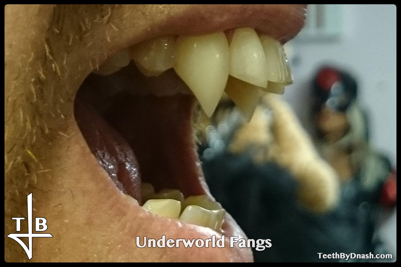 http://underworld-custom_fangs-teeth_by_dnash-14