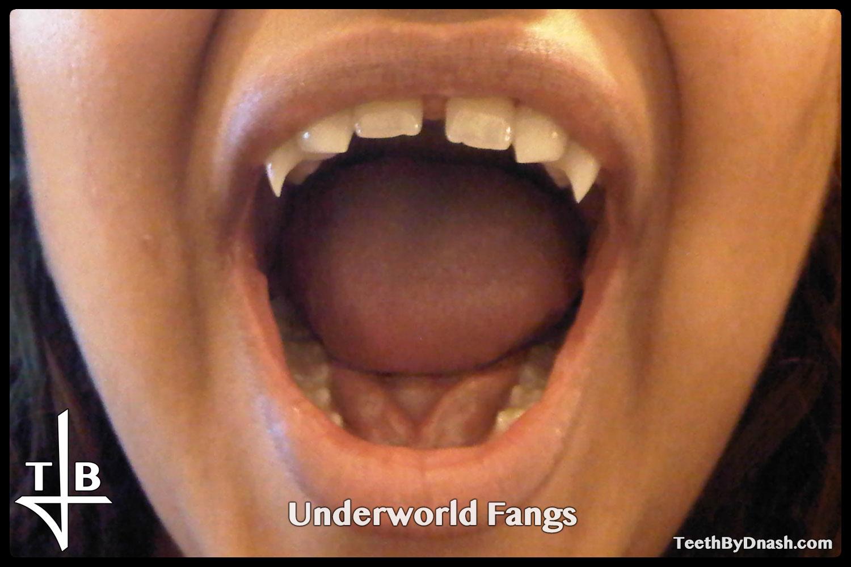 http://underworld-custom_fangs-teeth_by_dnash-17