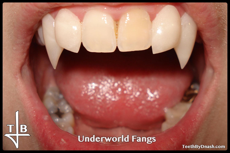 http://underworld-custom_fangs-teeth_by_dnash-19