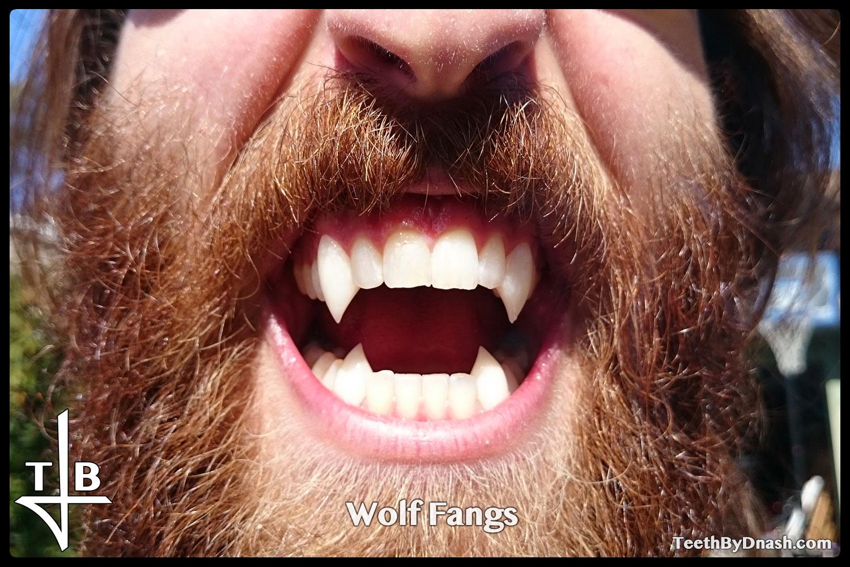 http://wolf-custom_fangs-teeth_by_dnash-01