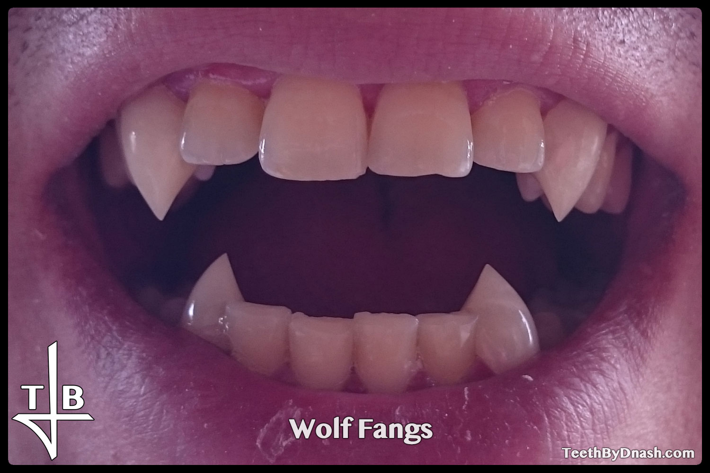 http://wolf-custom_fangs-teeth_by_dnash-08