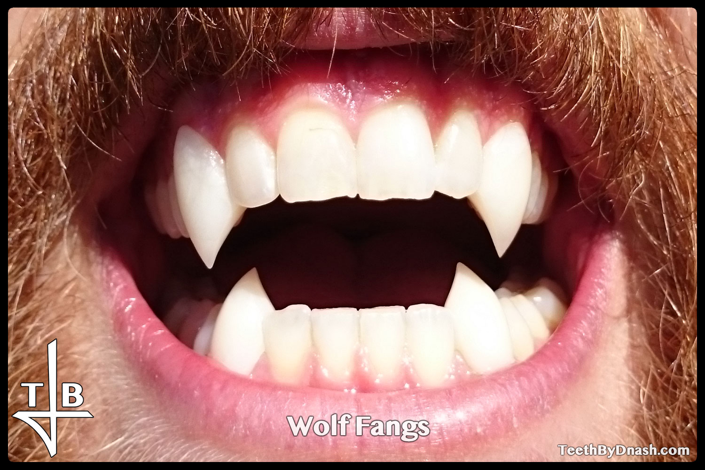http://wolf-custom_fangs-teeth_by_dnash-12