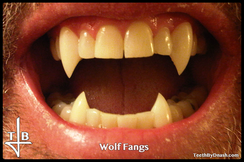 http://wolf-custom_fangs-teeth_by_dnash-13