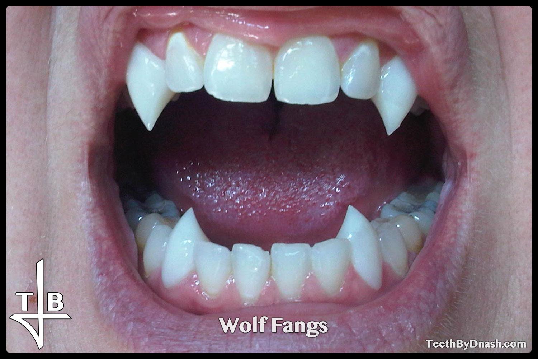 http://wolf-custom_fangs-teeth_by_dnash-15