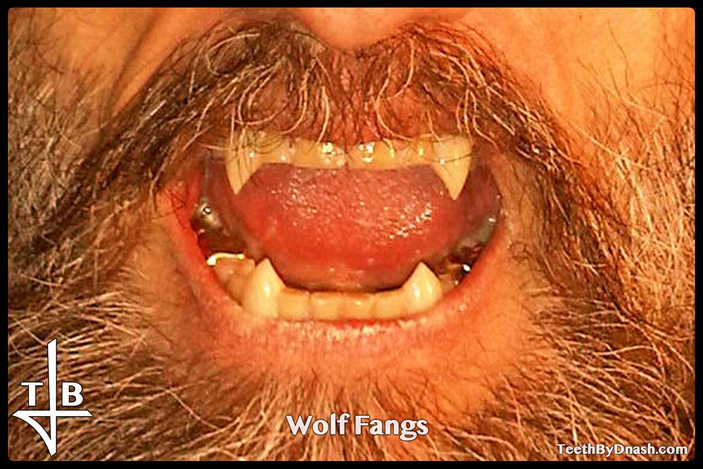 http://wolf-custom_fangs-teeth_by_dnash-17